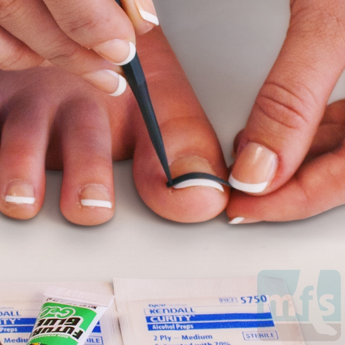 How to Cure An Ingrown Toenail Infection!