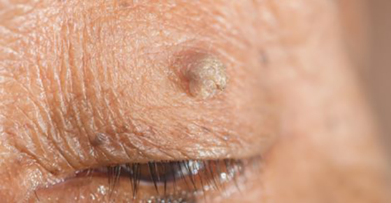 Remove Skin Tag In 5 Days With One Cheap Ingredient!