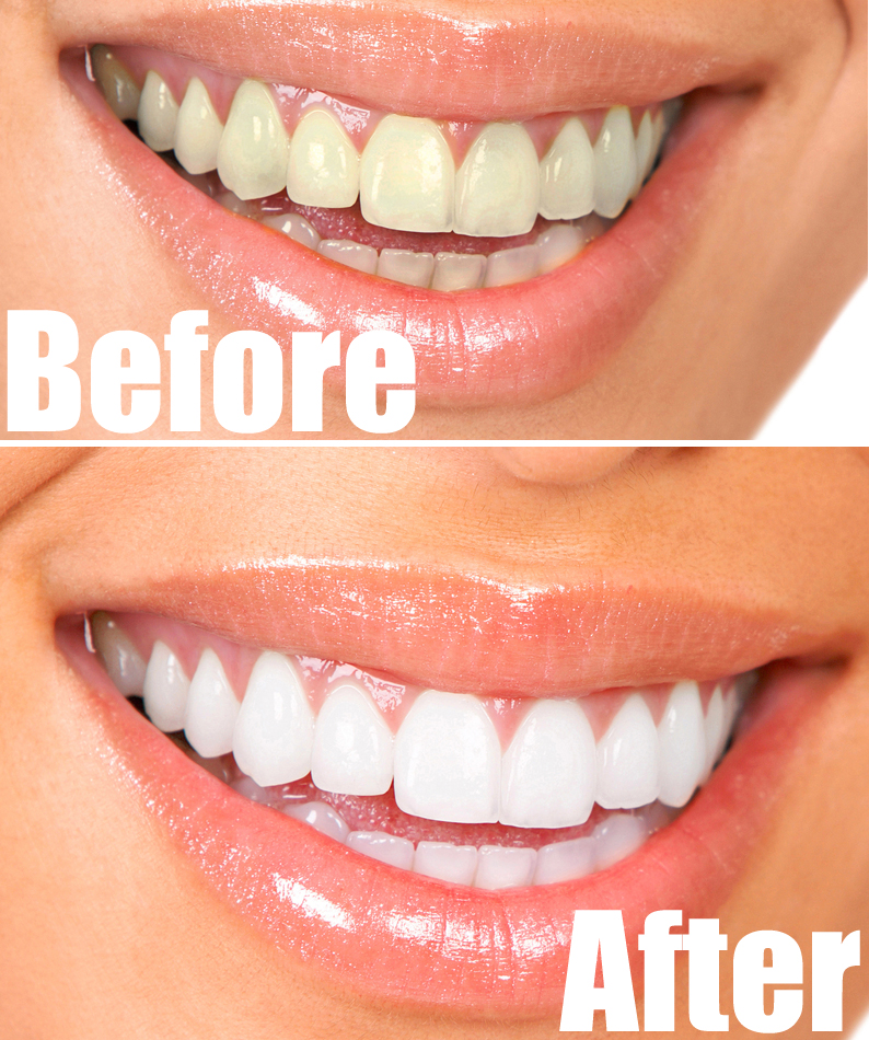 Natural White Teeth In 3 Minutes! See How!