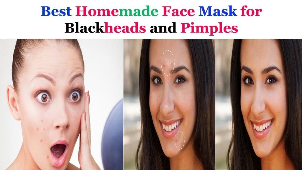 Homemade Masks For Acne And Blackheads!