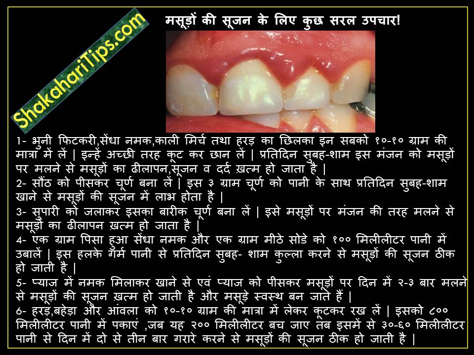 Remedies for Gingivitis