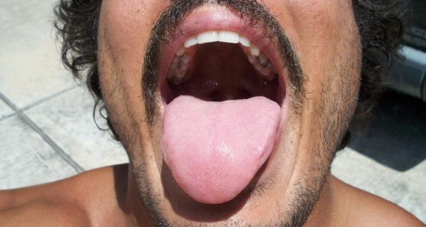 Tongue Can Tell You about Your Health