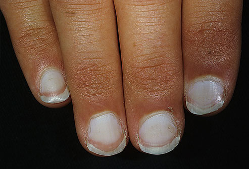 Your Nails Could Be Indicators Of Your Health. Read How