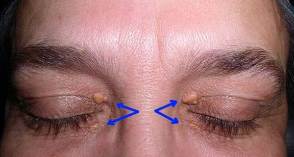 Warning Signs of a Heart Attack Can be Found on Your Eyelids!