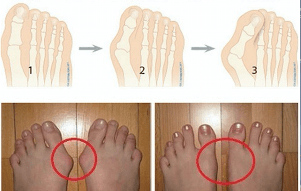 2 Ways to Remove Bunions and Heal Swollen Joints