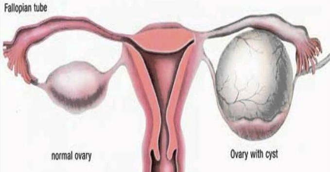 8 amazing ways to naturally heal the ovarian cysts