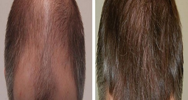 This Recipe Will Make Your HAIR Grow Faster and Longer