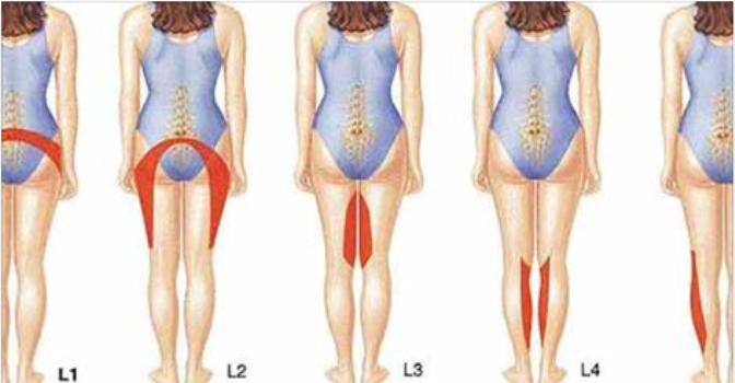 What Causes Herniated Disc And How to Treat It!