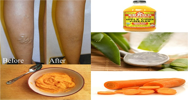 Cure Your Varicose Veins With This Powerful Mixture Apple Cider, Carrot And Aloe Vera (RECIPE)