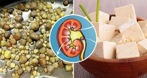 Man Has 420 Kidney Stones Removed In One Operation - The Doctor Says His Love Of TofuIs The Reason To Blame