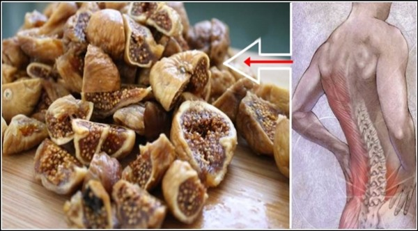 Permanently Remove The Pain In The Spine, Back And Legs With This Homemade Natural Solution!