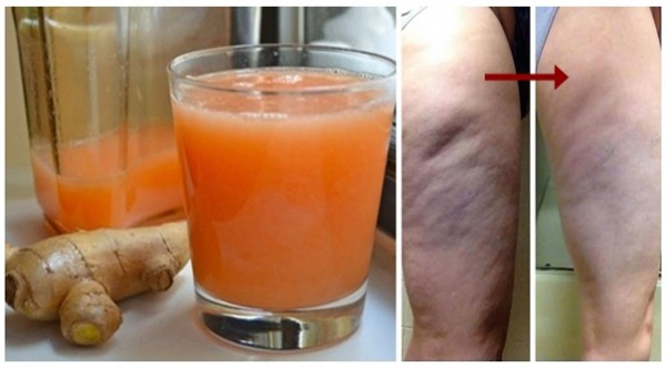 prepare-this-drink-consume-it-regularly-and-you-will-successfully-fight-cellulite