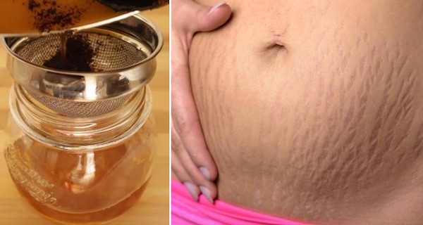 Get-Rid-Of-Stretch-Marks-Fast-With-These-7-Natural-Remedies-