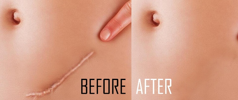 this-home-treatment-will-remove-your-scars-and-stretch-marks