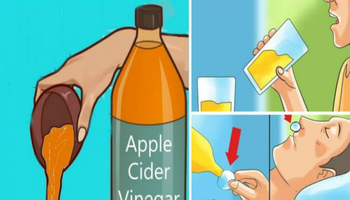 Image result for Drinking Apple Cider Vinegar Before Bedtime Will Change Your Life for Good!