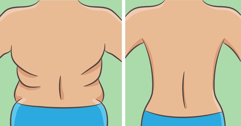 Image result for How To Get Rid of The Folds On Your Back And Sides in 21 Days